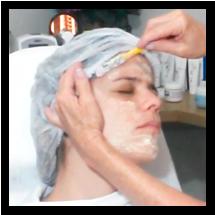 Crioterapia Facial Estética: o que é Neve Carbônica?